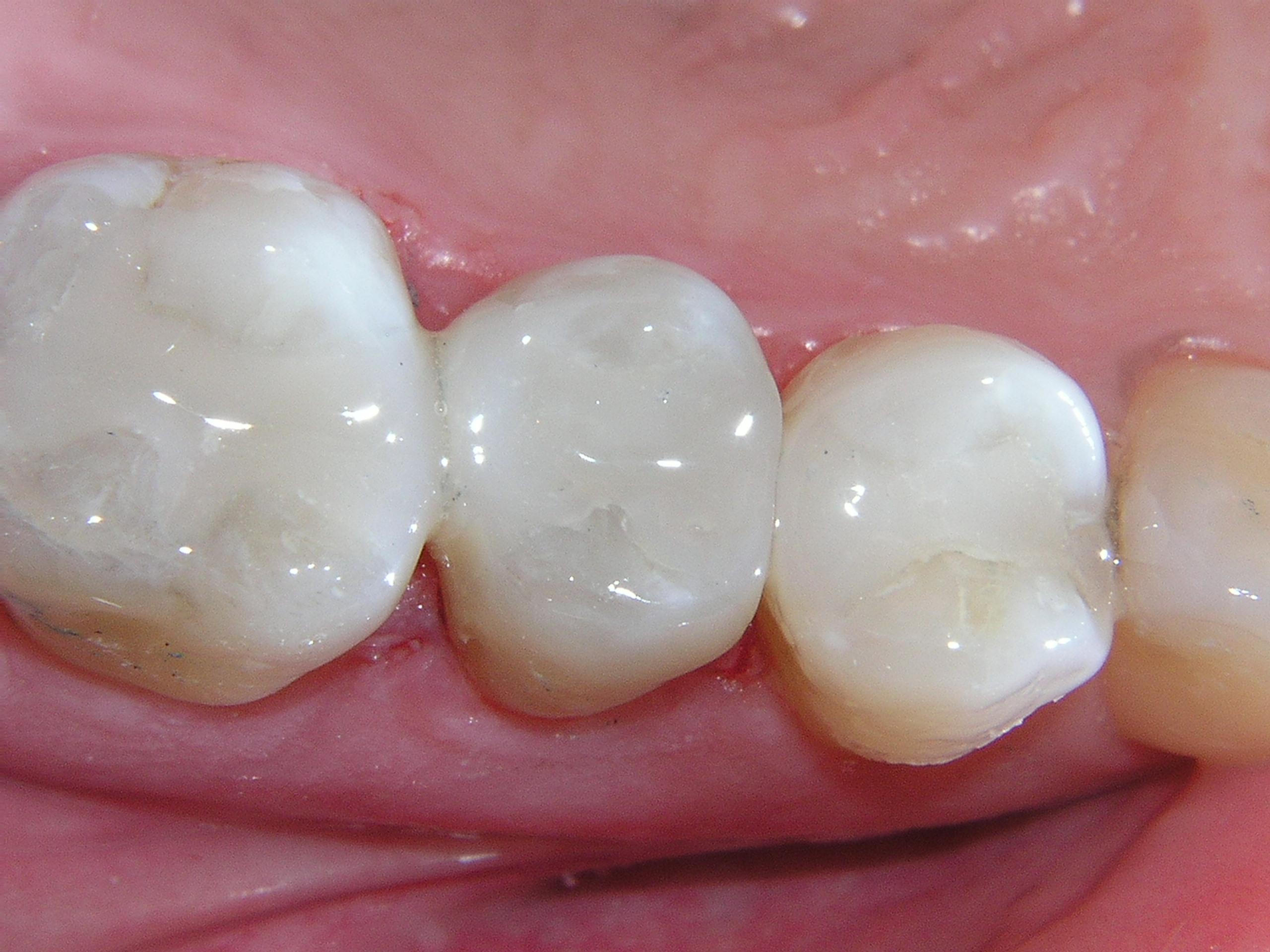 composite dental fillings porterville ca