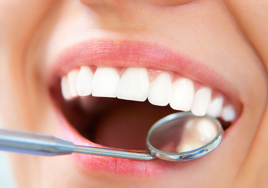 dental-tooth-colored-restorations
